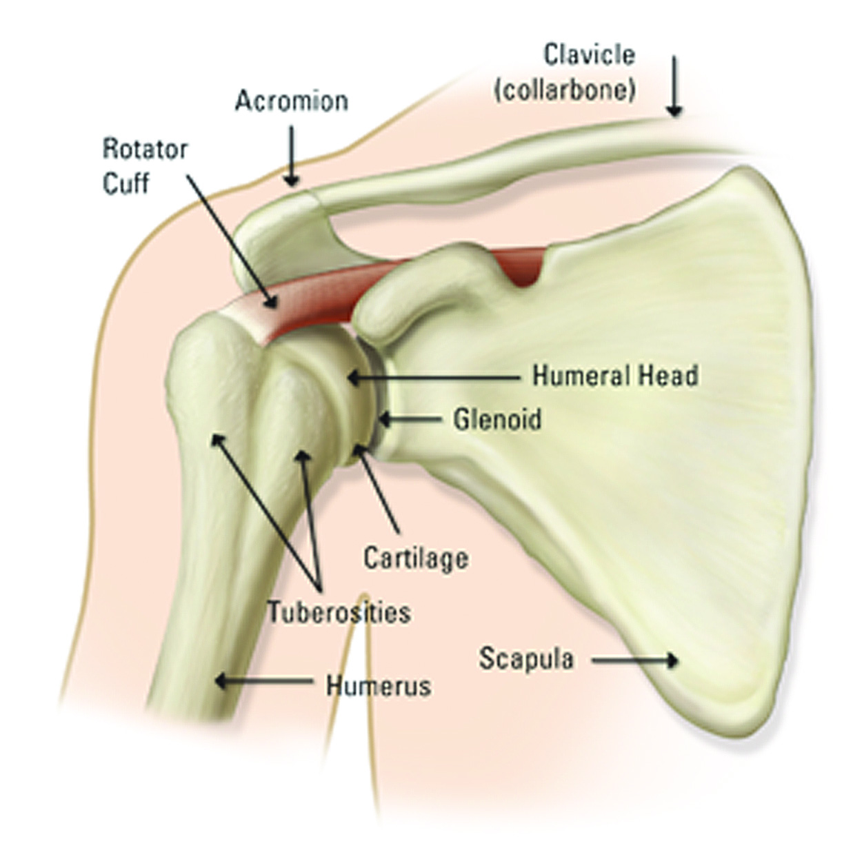 Torn Rotator Cuff Symptoms and the Treatment